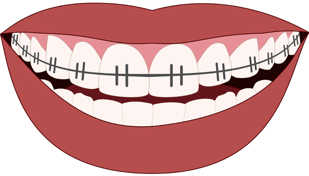 Overby Orthodontics - Surviving With Braces