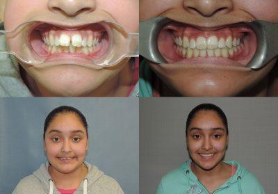 Yesnia's Smiles Change Lives Program Results